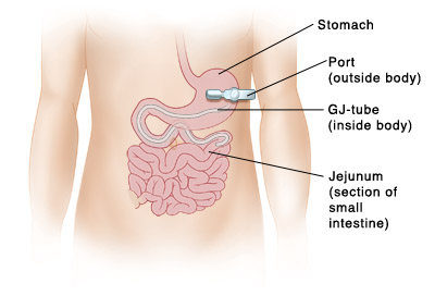 Image showing the gastro-jejunum  tube