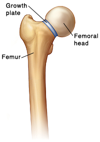 Front view of femur showing growth plate between neck of femur and femoral head.