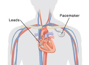 Outline of human head and chest showing cross section of heart with pacemaker in place. Generator is under collarbone with two leads entering vein and going into heart. Right atrial lead ends in right atrium and right ventricular lead ends in bottom of right ventricle.