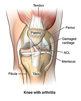 A knee with osteoarthritis