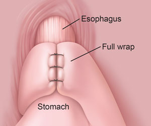Close view of the space where the esophagus, LES, and stomach come together. The wrap is permanently stitched in place.