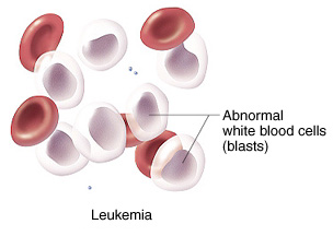 Image of abnormal white blood cells.