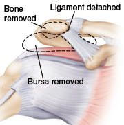 Image of the shoulder joint showing bone removed, bursa removed, and ligament detached