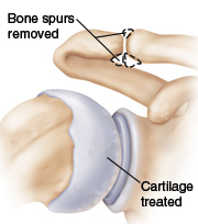 Shoulder joint showing bone spurs removed and cartilage treated