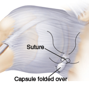 Shoulder joint showing suture line and capsule folded over