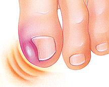 Closeup of big toe with ingrown nail causing swelling.
