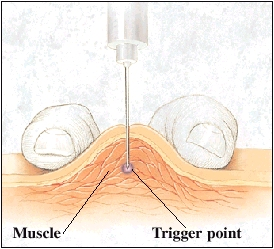 Image of an injection into the trigger point of a muscle
