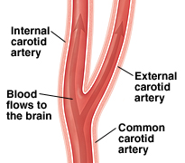 Illustration of a healthy carotid artery.