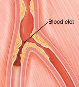 Image of a blocked artery