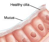 Illustration of healthy cilia and mucus lining the airways